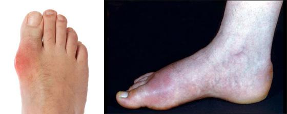 maladies pieds gouttes