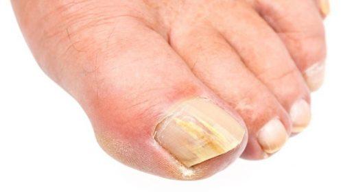 maladies pieds mycose
