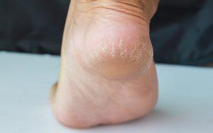 maladies pieds repandues